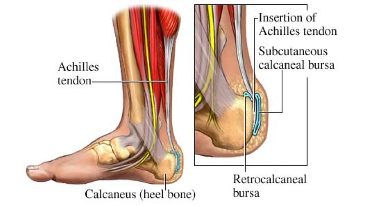Physical therapy for bursitis suwanee ga ccuart Image collections